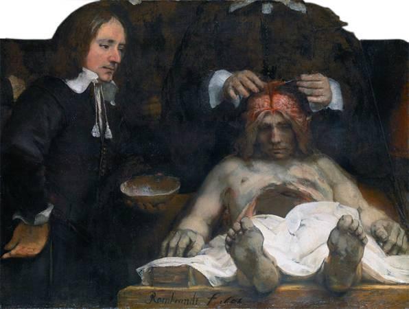 林布蘭,《瓊德曼醫生的解剖課》,1656。圖取自Wikipedia。