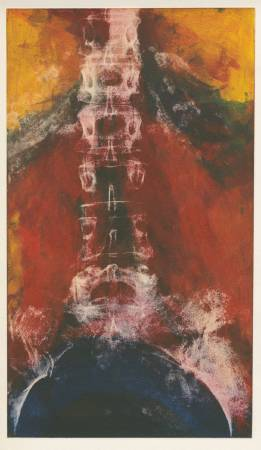 莉莎白.詹姆森《疊放》,取自藝術家脊柱的X光照。圖/ 取自 藝術家創作官網。