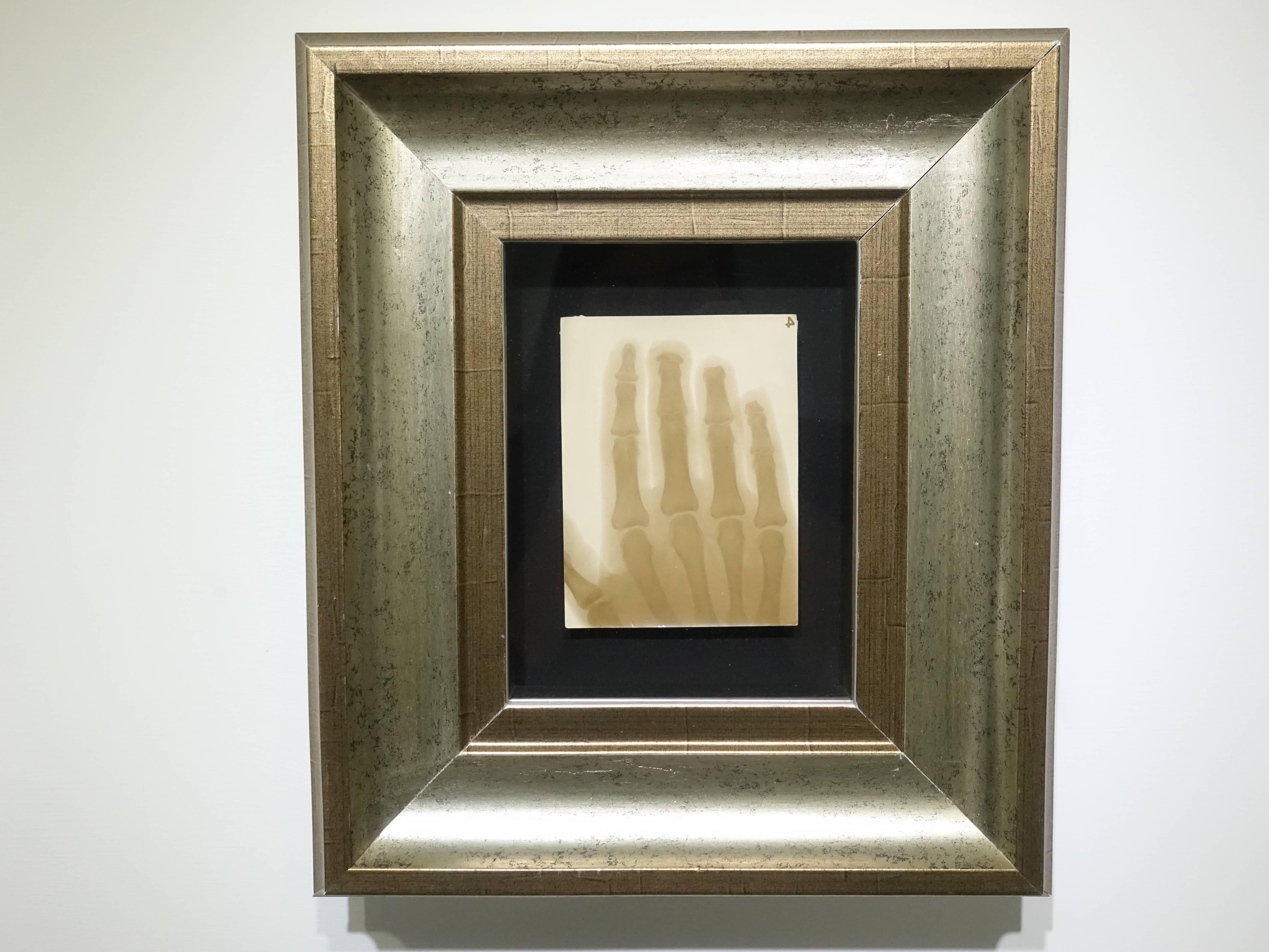 彭瑞麟,《彭瑞麟在東京寫專時以X光拍攝鐵工廠工人的手》,38x28 cm,X光攝影,1930。