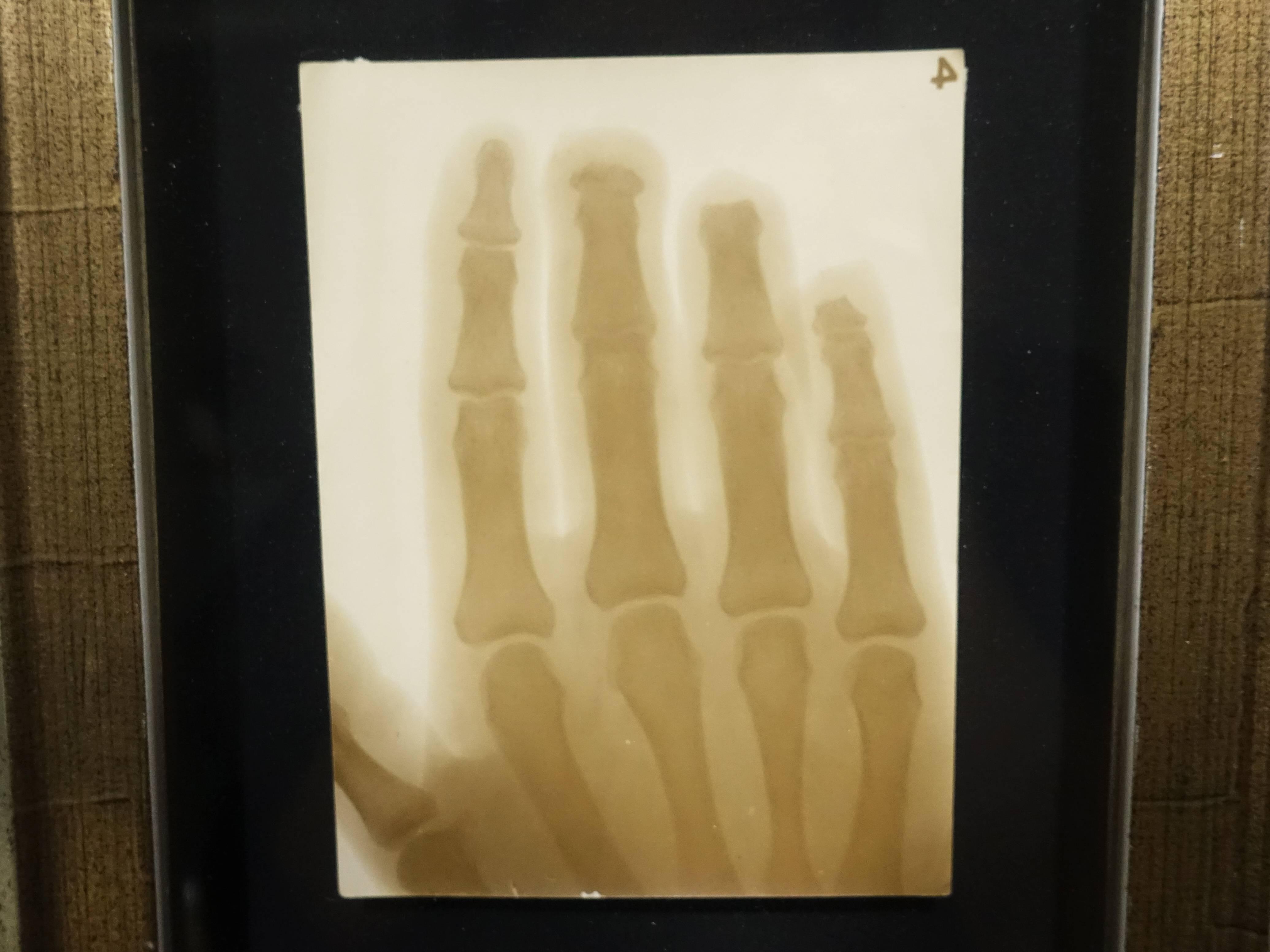 彭瑞麟,《彭瑞麟在東京寫專時以X光拍攝鐵工廠工人的手》細節,38x28 cm,X光攝影,1930。