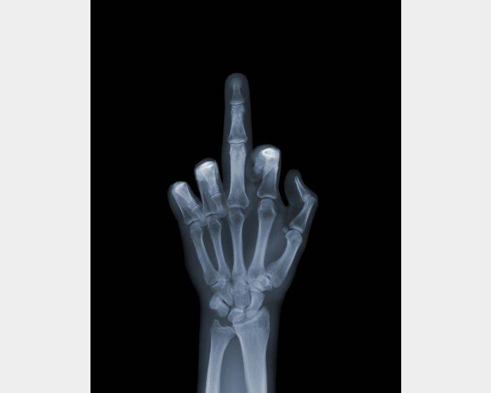 Nick Veasey-The Finger